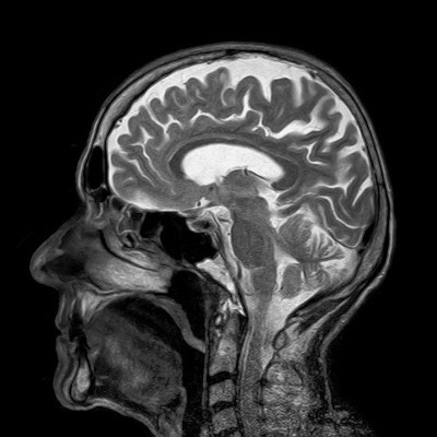 medical image of human brain interior